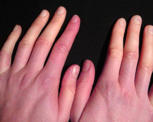 Болезнь Рейно — машинистки и пианистки в зоне риска