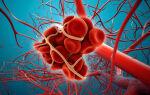 Что такое тромбоэмболия?