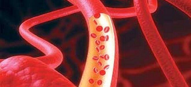 Что представляет из себя атеросклероз легких?