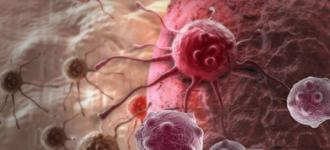 Мегакариоцитарный лейкоз