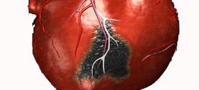 Дают ли инвалидность после инфаркта миокарда?
