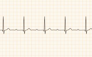 АВ блокада 1 степени — самая частая форма сердечного порока