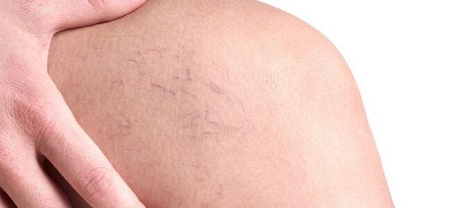 Почему лопаются сосуды на ногах и как это лечить?