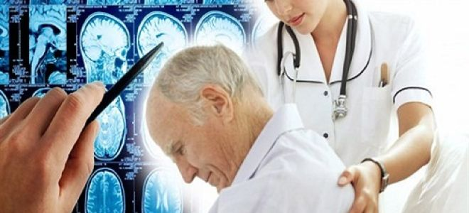 Особенности выбора и получения физической нагрузки после инсульта