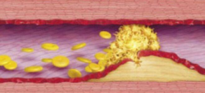 Лечение тромбоза в подробностях