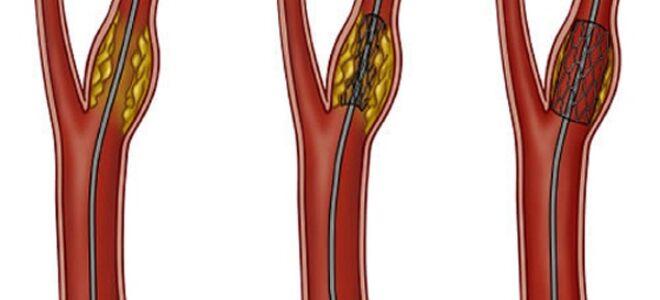 Стеноз артерий нижних конечностей