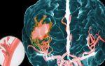 Последствия геморрагического инсульта с правой стороны