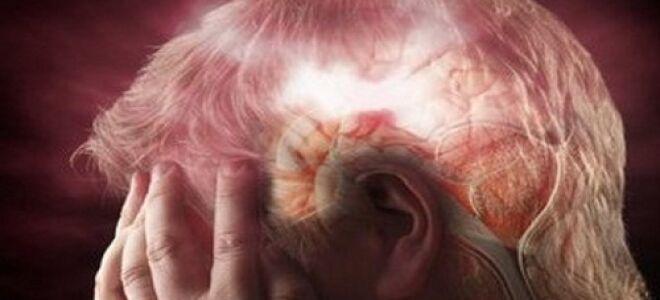 Уход за лежачими больными после инсульта