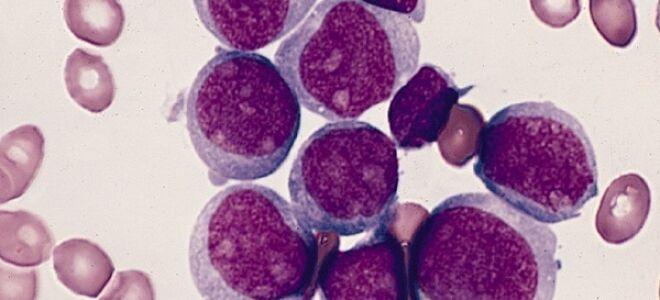 Острый лимфобластный лейкоз в деталях