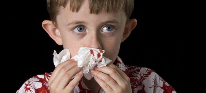 Неотложная помощь при носовом кровотечении