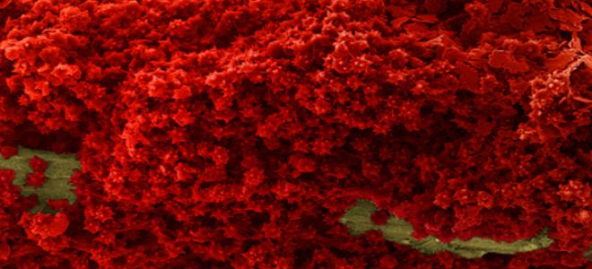Тромбоцитопеническая пурпура
