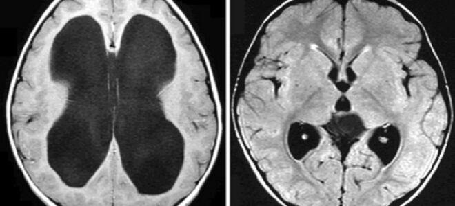 Что такое гипертензия головного мозга?