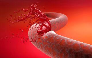 Венозное кровотечение: как быстро распознать и оказать помощь