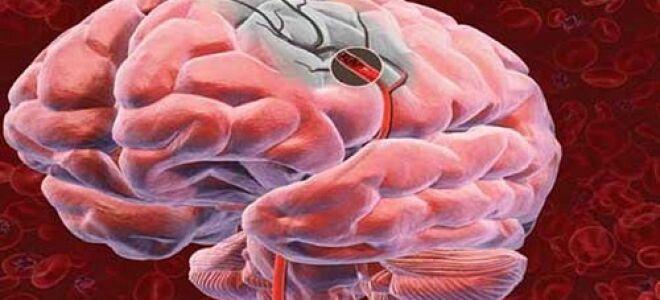 Всё об инфаркте мозга