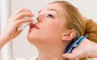 Как остановить кровь из носа — простые методы