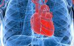 Симптомы сердечно-сосудистых болезней