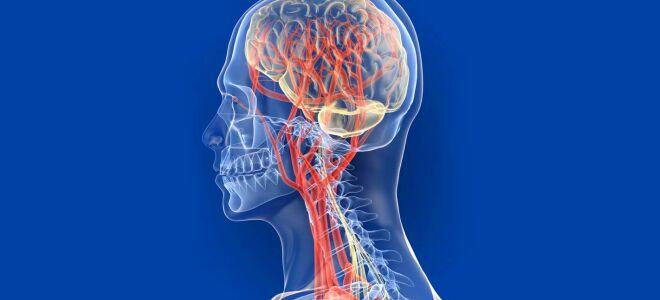 Как проявляются сосудистые заболевания головного мозга?