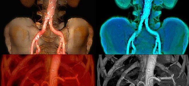Аневризма селезеночной артерии