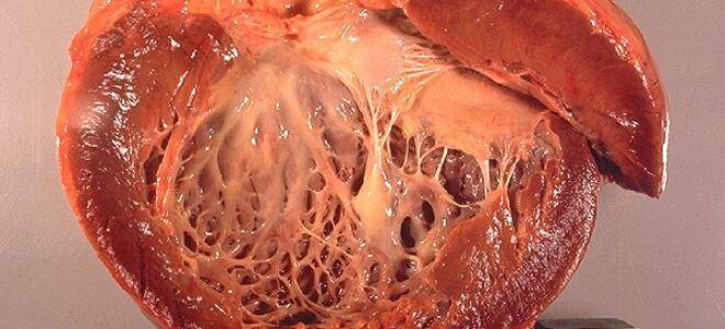 Почему возникает кардиомиопатия: что это такое и ее лечение