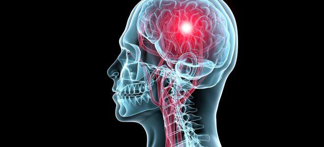 Что такое транзиторная ишемическая атака: причины и лечение