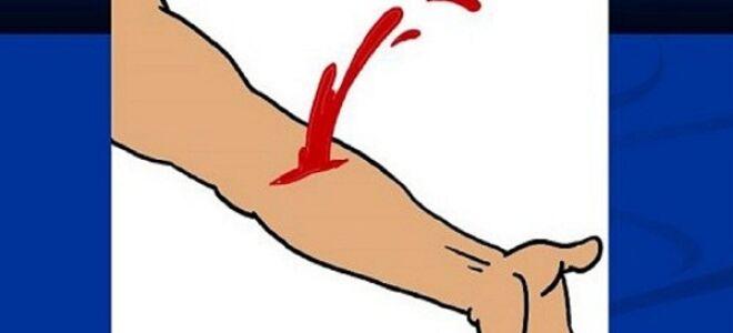 Артериальное кровотечение: способы временной остановки и оказание доврачебной помощи