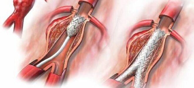 Аневризма аорты брюшной полости
