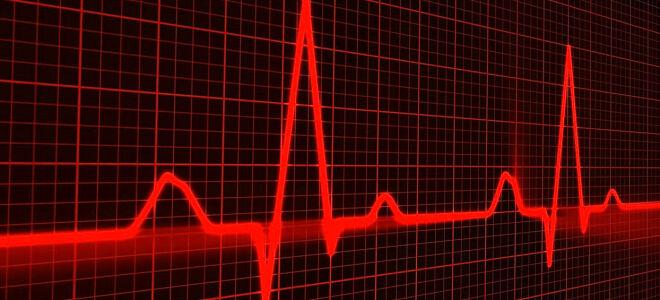 Как распознать инфаркт миокарда по ЭКГ
