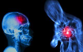Опасные состояния: инсульт и инфаркт