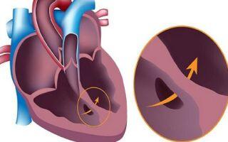Самые распространённые врождённые пороки сердца у детей и взрослых