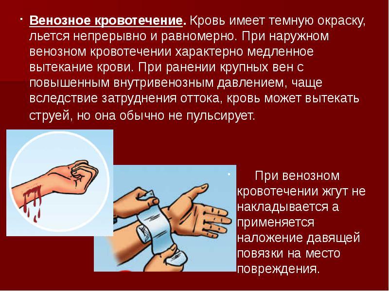 Остановка крови