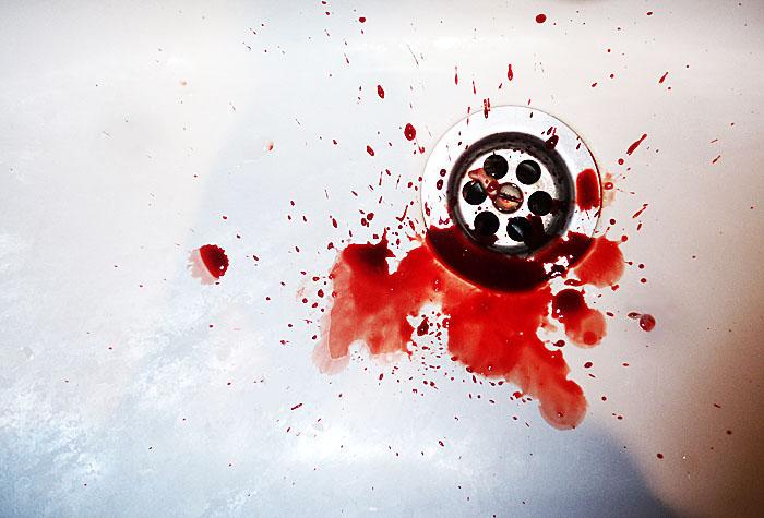 Кровь в слюне