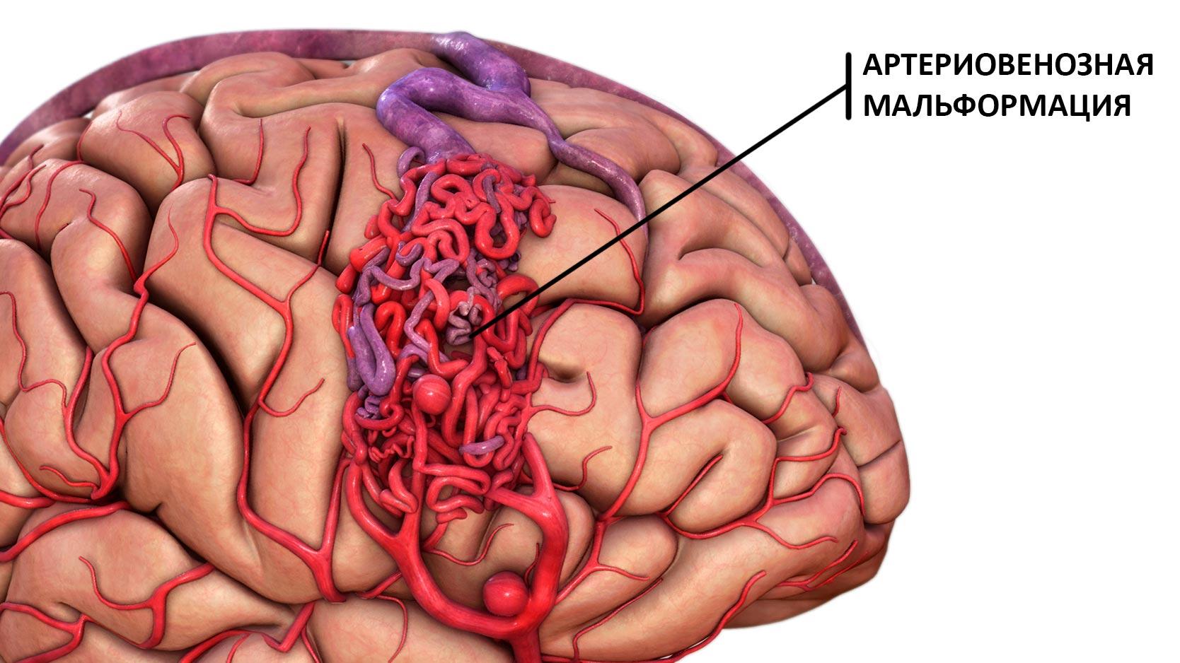 Артериовенозная мальформация головного мозга