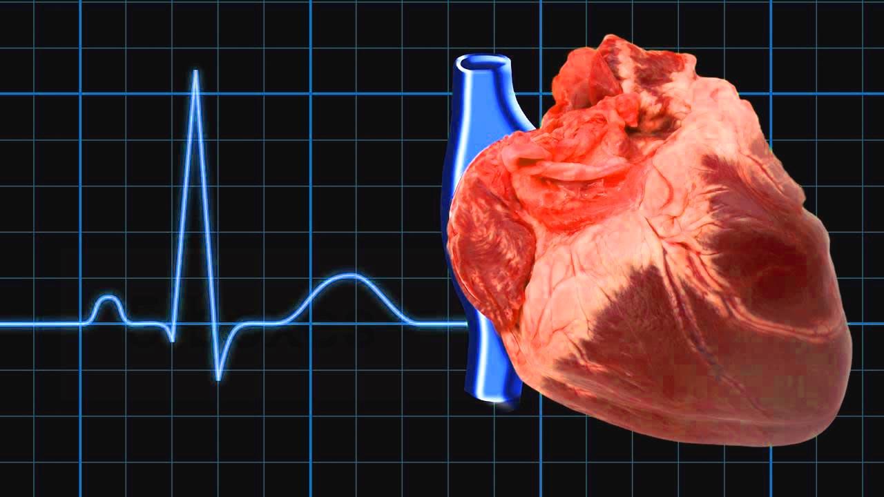Атриовентрикулярная блокада сердца - лечение, симптомы, экг