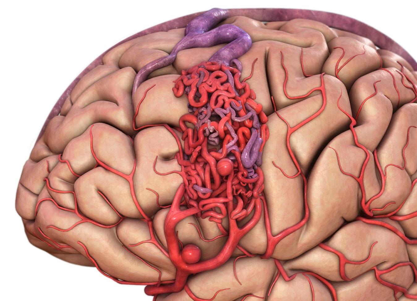 Церебральная венозная дисгемия
