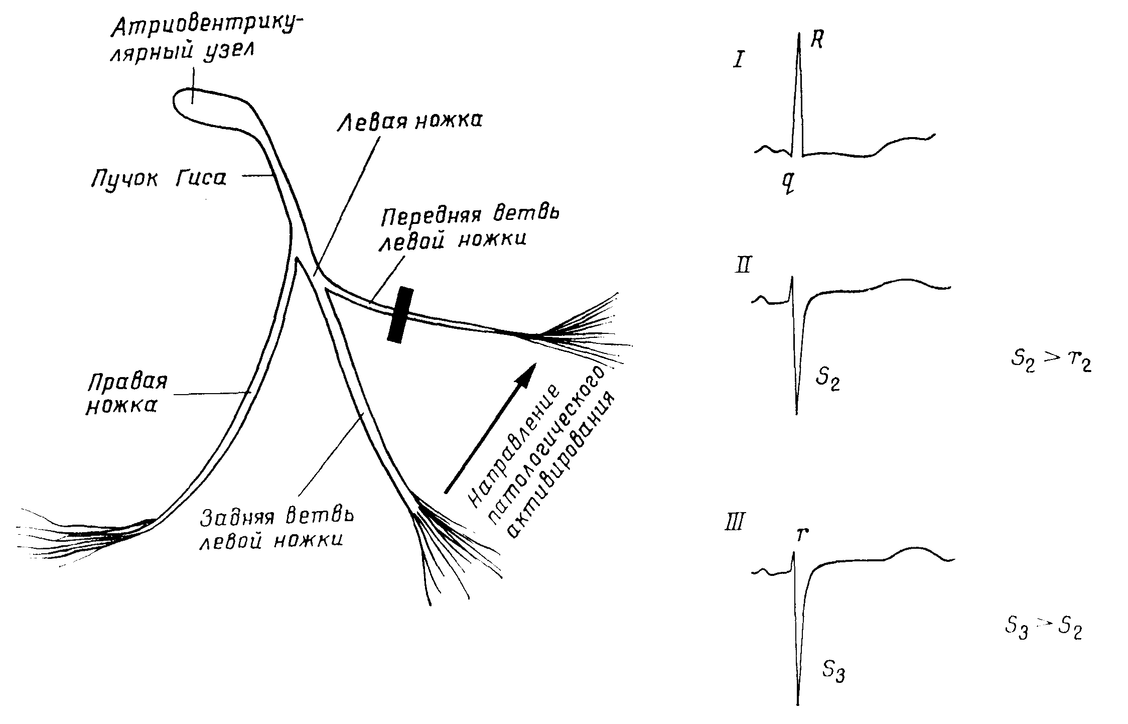 Блокада передней ветви (гемиблокада) левой ножки пучка гиса
