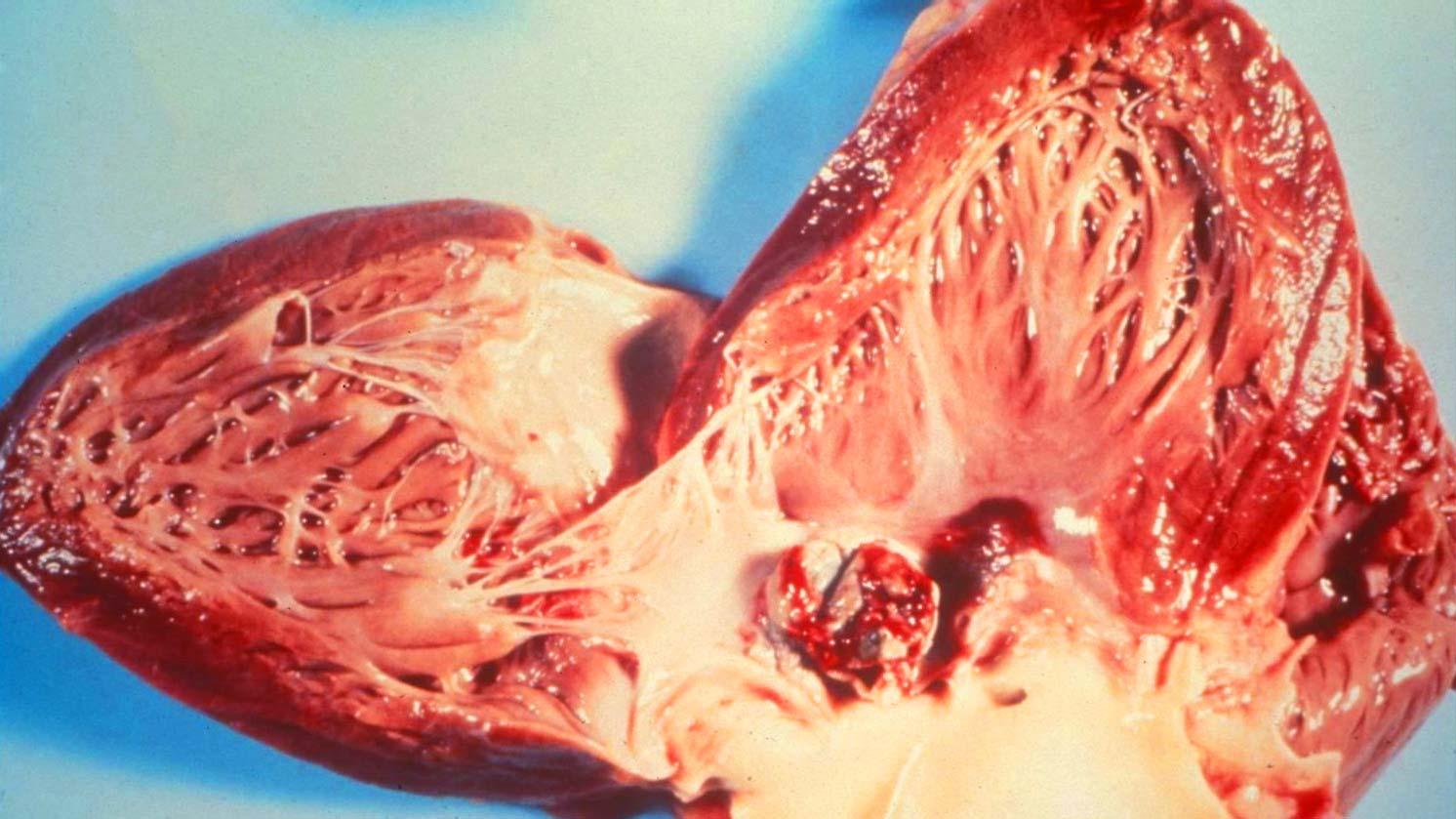 Классификация инфекционныого эндокардита