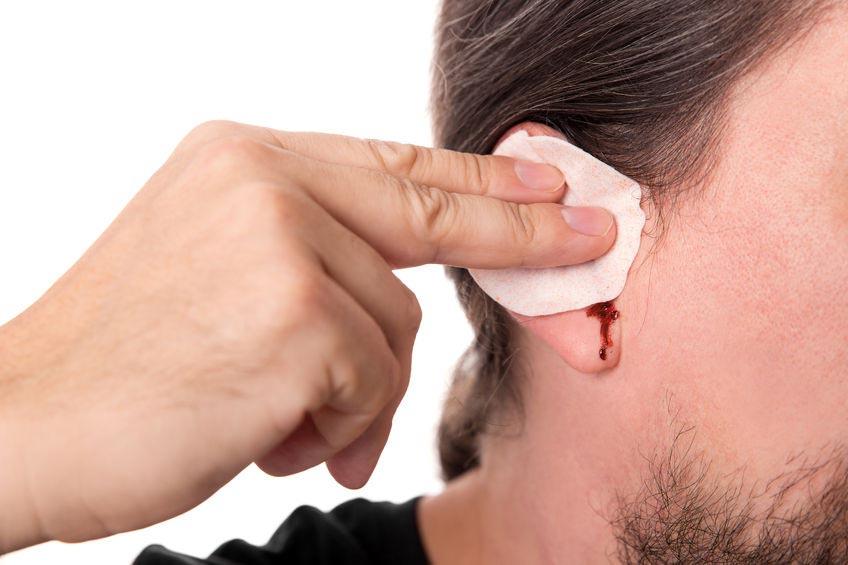 Выделение крови из ушей