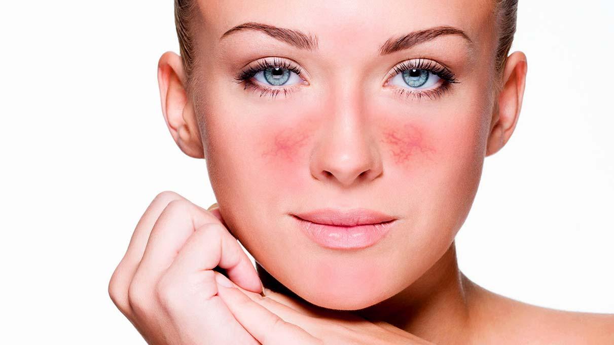 лечение сосудистых звездочек на лице