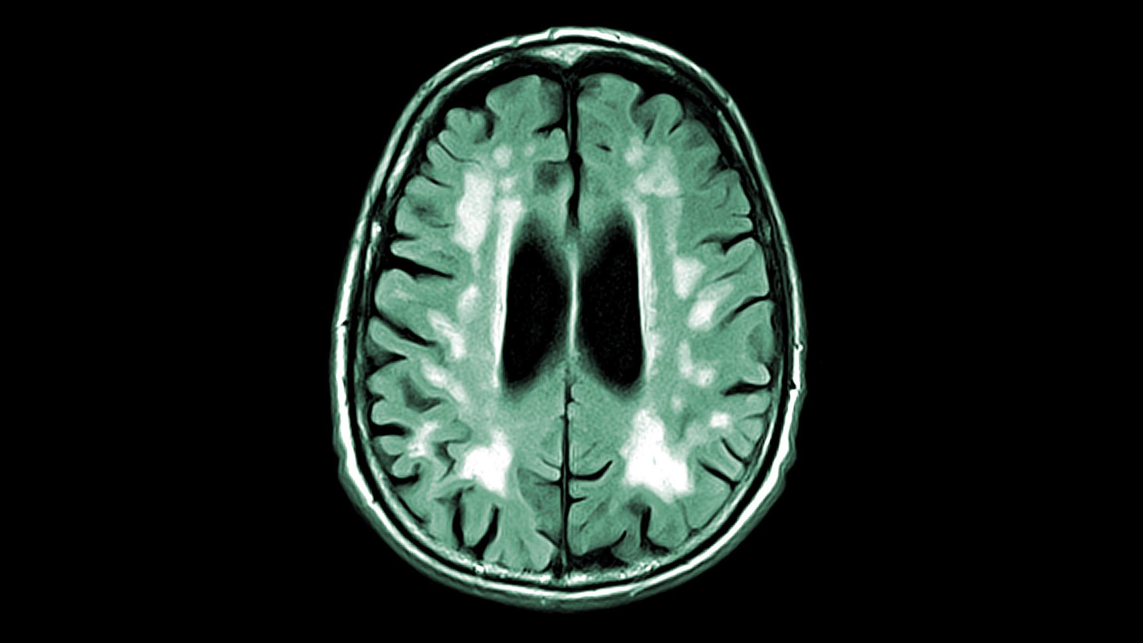Сосудистая деменция на рентгене