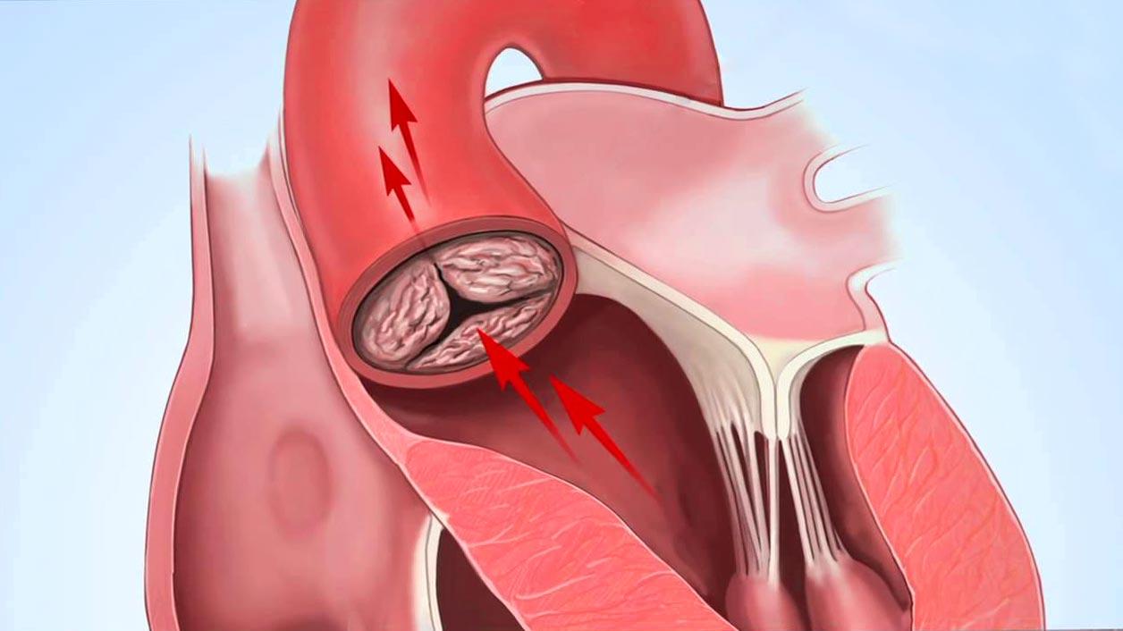 Нарушения деятельности митрального клапана провоцируют возникновение аортальных стенозов