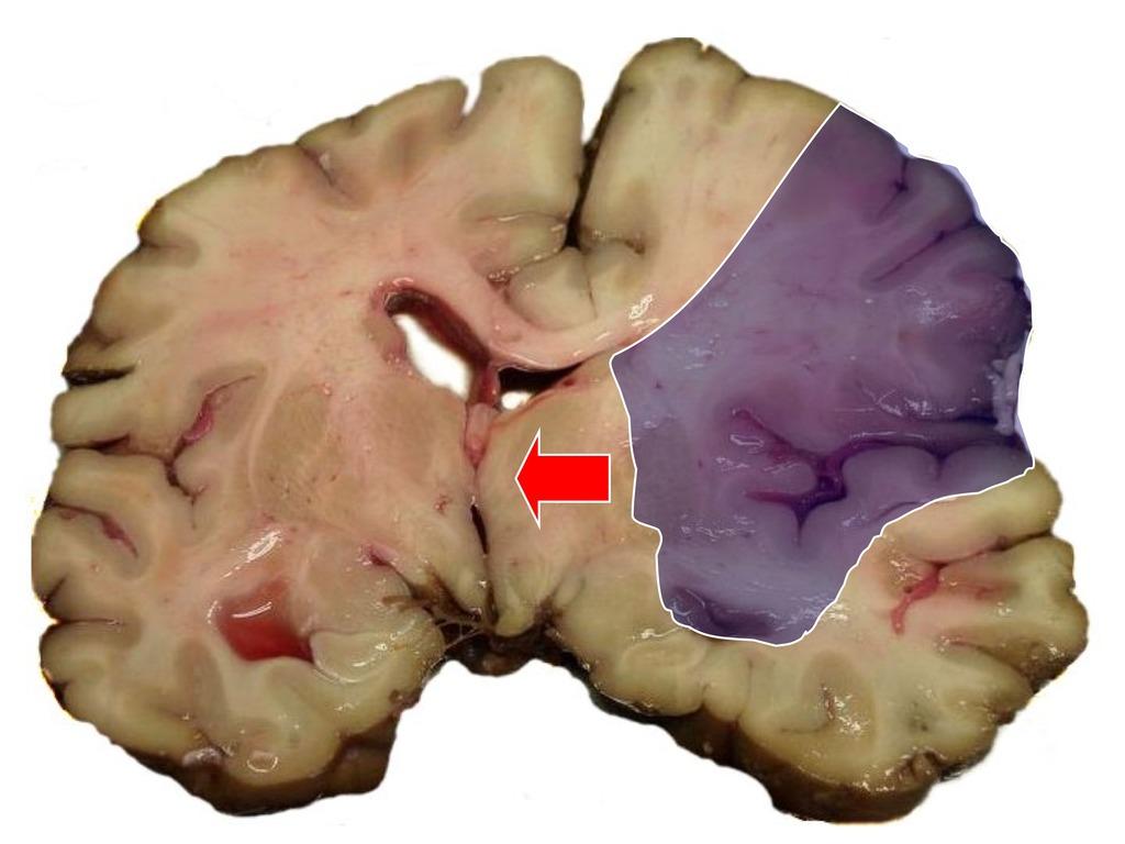 Омертвение мозга