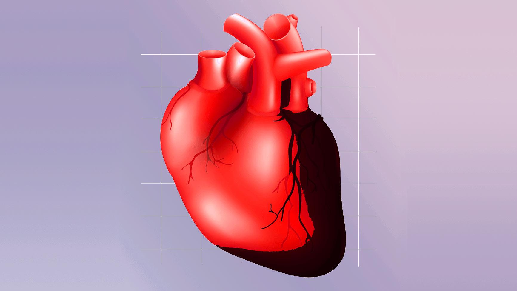 Обширный инфаркт - массовое поражение тканей сердца
