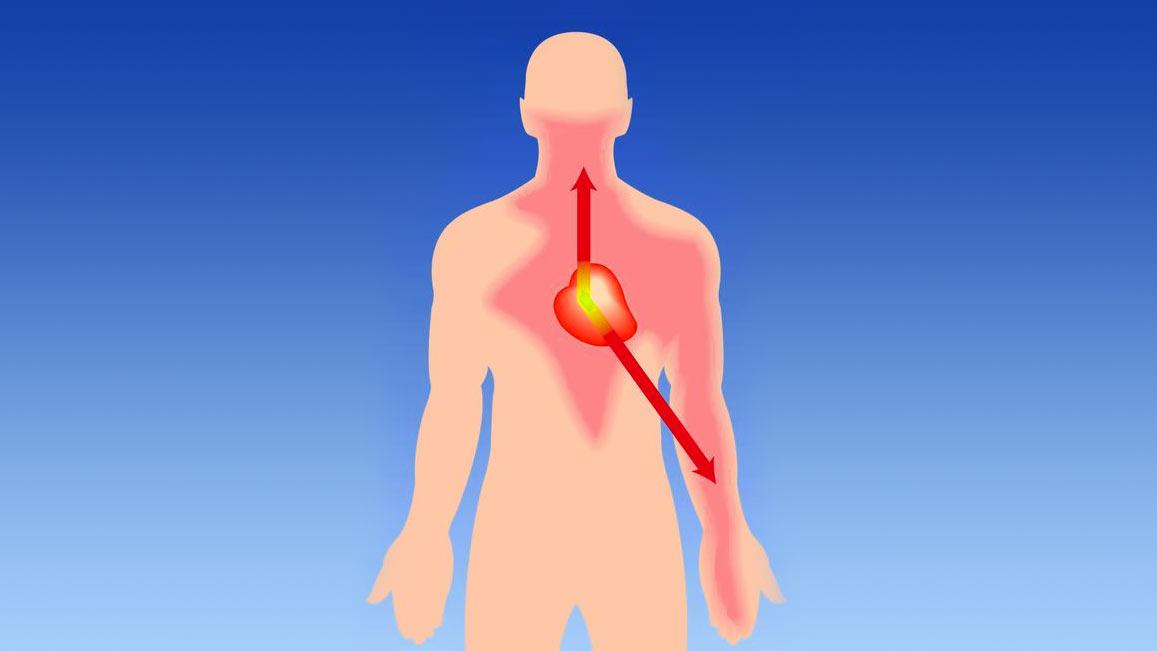 Один из симптомов стенокардии - боль слева