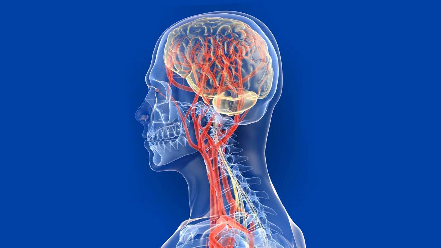 3D модель сосудов головного мозга