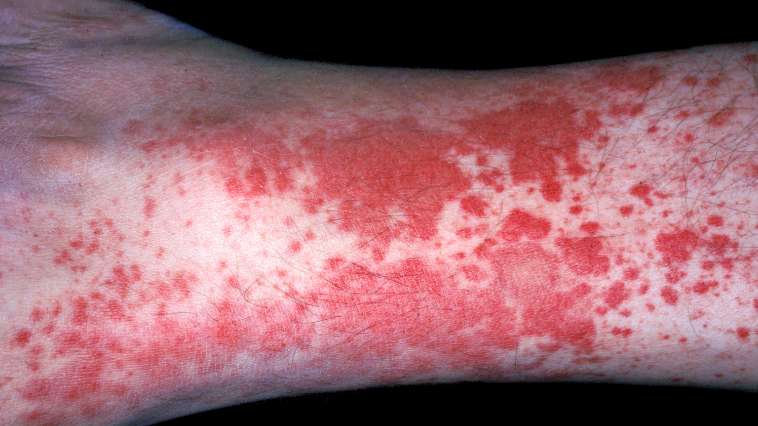Так выглядит аллергический васкулит