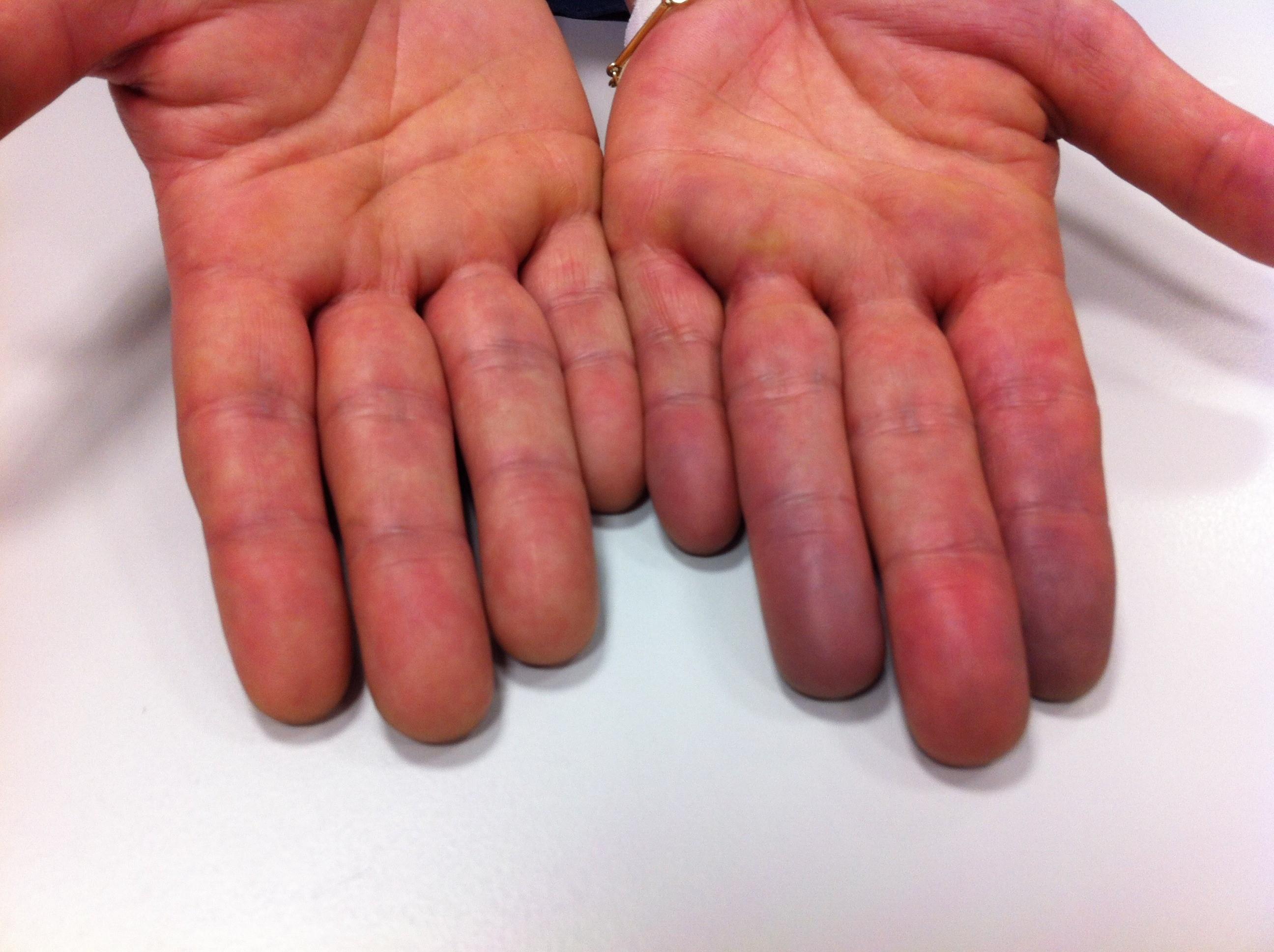 Пальцы синюшного цвета