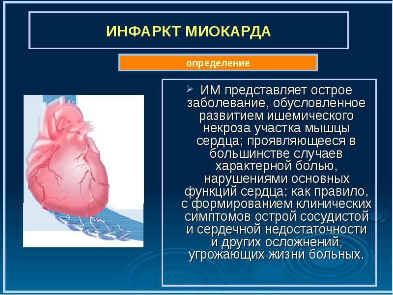 Инфаркт миокарда ИМ