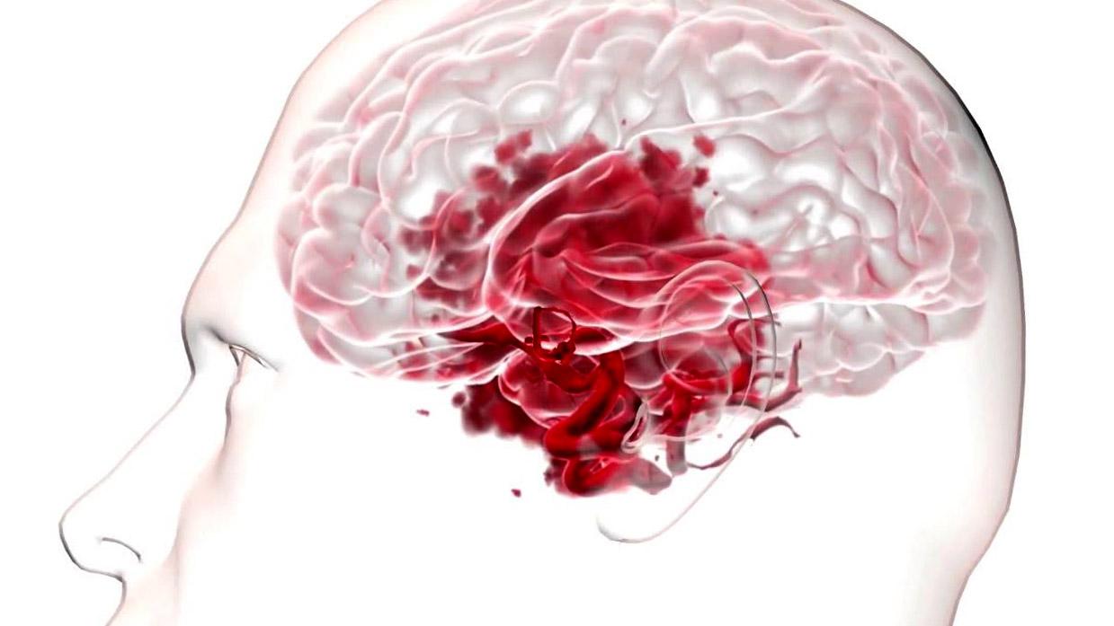 Разрыв аневризмы сосудов головного мозга: симптомы и лечение