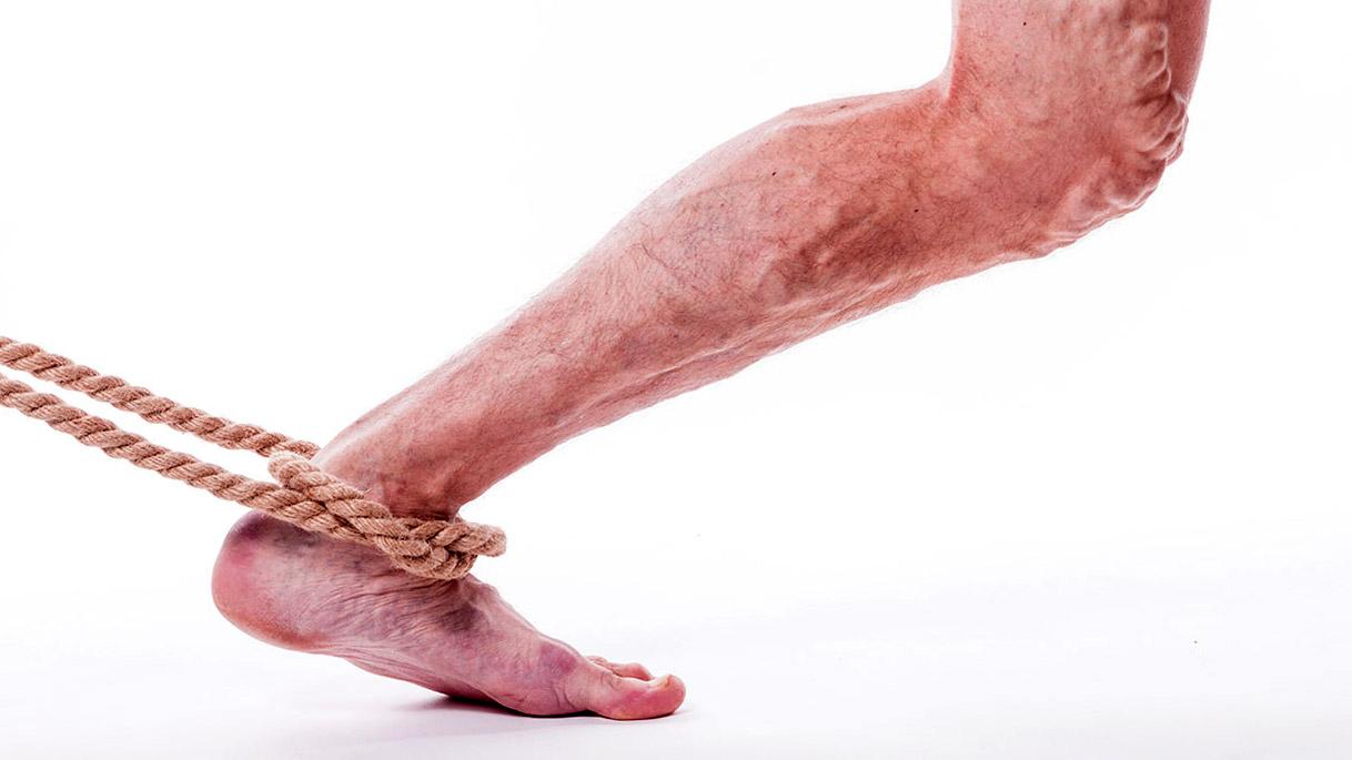 Тромбофлебит нижних конечностей является причиной чувства тяжести в ногах