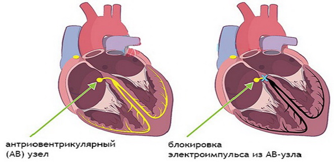 Блокады сердца